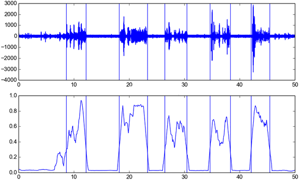 Heart Sound Segmentation using Deep Learning - A doctor in making?
