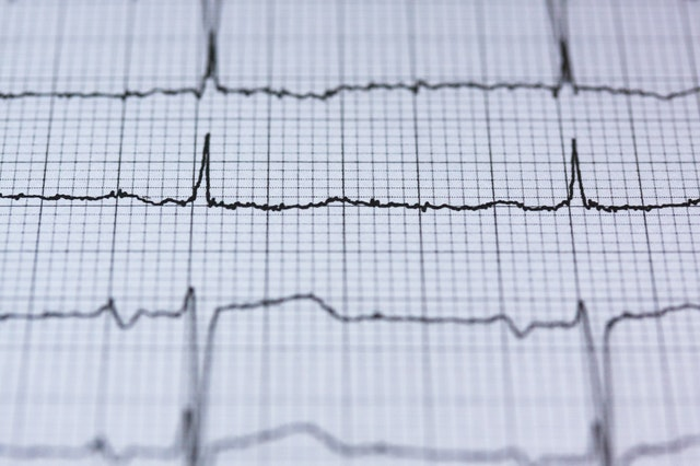 Heart Sound Segmentation using Deep Learning - A doctor in