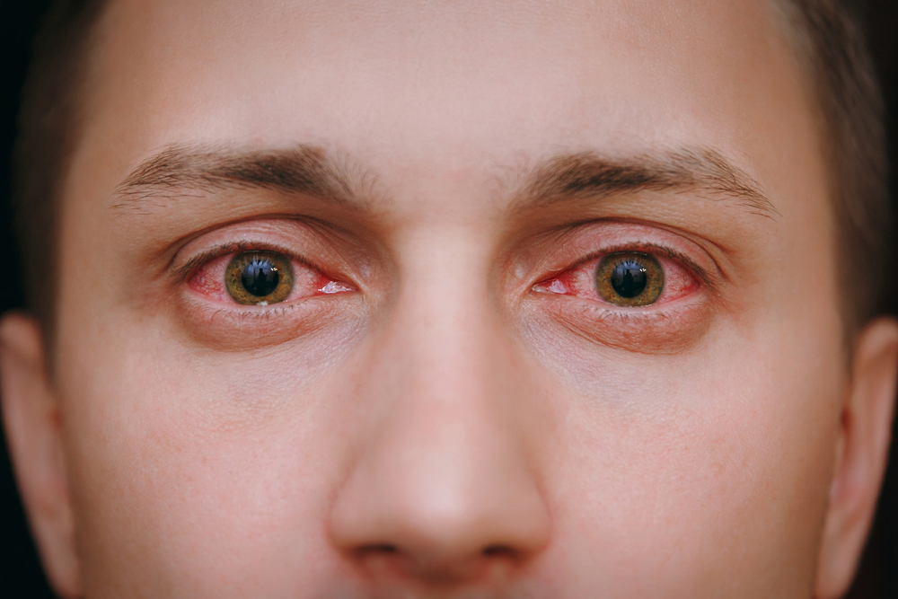 Tips for Glaucoma Patients during COVID-19