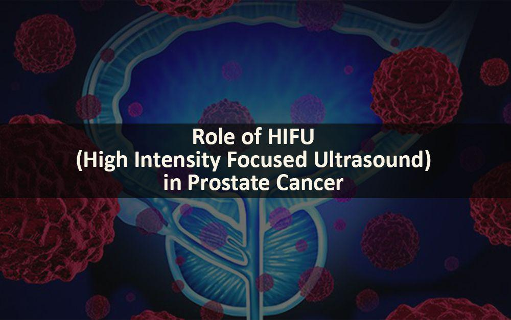 Role of HIFU in Prostate Cancer