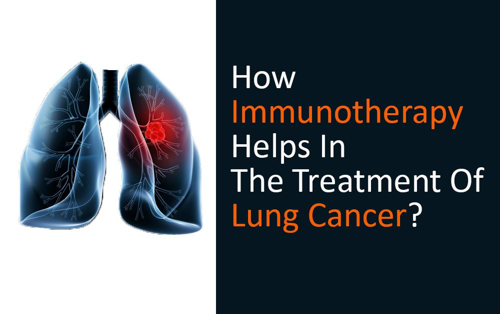 How Immunotherapy Helps In The Treatment Of Lung Cancer?