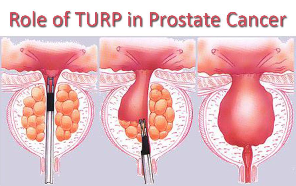 Role of TURP in Prostate Cancer