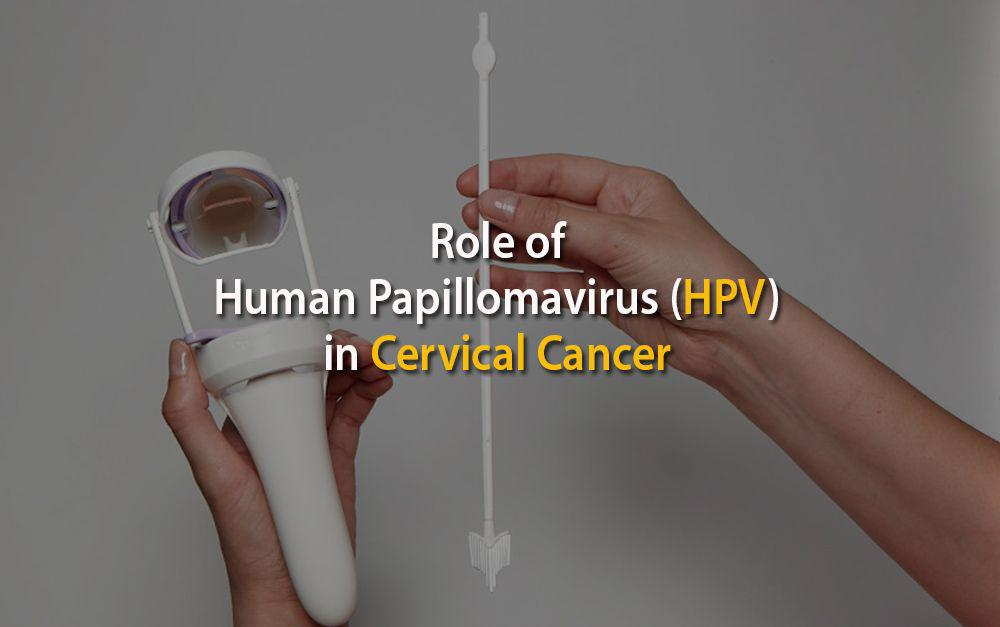Role of Human Papillomavirus (HPV) in Cervical Cancer
