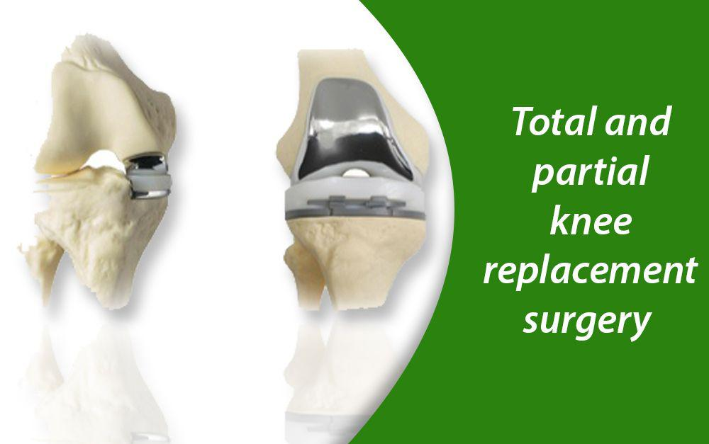 Total-and-partial-knee-replacement-surgery