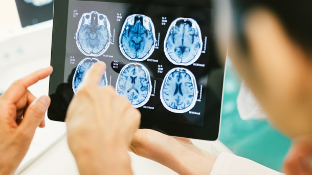 Study: Human Brain can function for hours after 'Clinical Death'