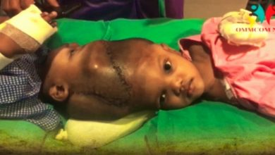 Photo of Odisha Prays Fervently For Well-Being Of Conjoined Twins Jaga-Balia
