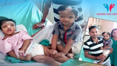 Photo of Surgery Stitches Removed, Separated Conjoined Twins Jaga, Balia Recovering Fast At Delhi AIIMS
