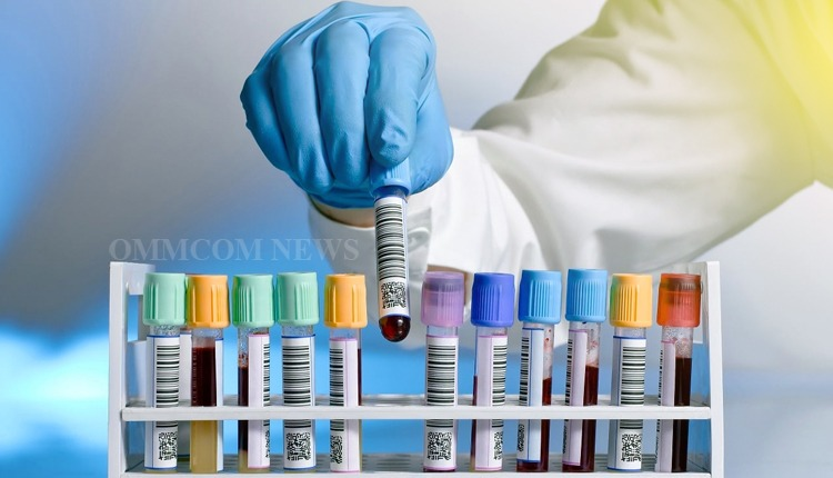 Over 47K Samples Tested For COVID-19 In Odisha In 24 Hours
