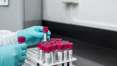 Photo of CSIR-Mylan Lab Ink Deal To Identify Potential Covid-19 Therapies