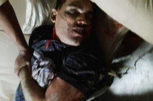 social-bihar-encounter-policeman-shot-dead-in-salarpur