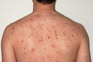 symptoms of chicken pox