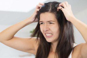 hair-loss-due-to-dandruff
