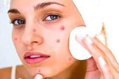 Natural ways to remvoe acne stars
