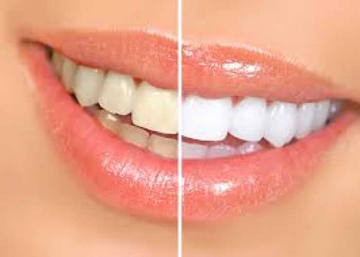 Crystal clear teeth